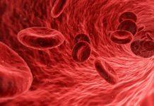 Erhöhte Eiweißwerte im Blut